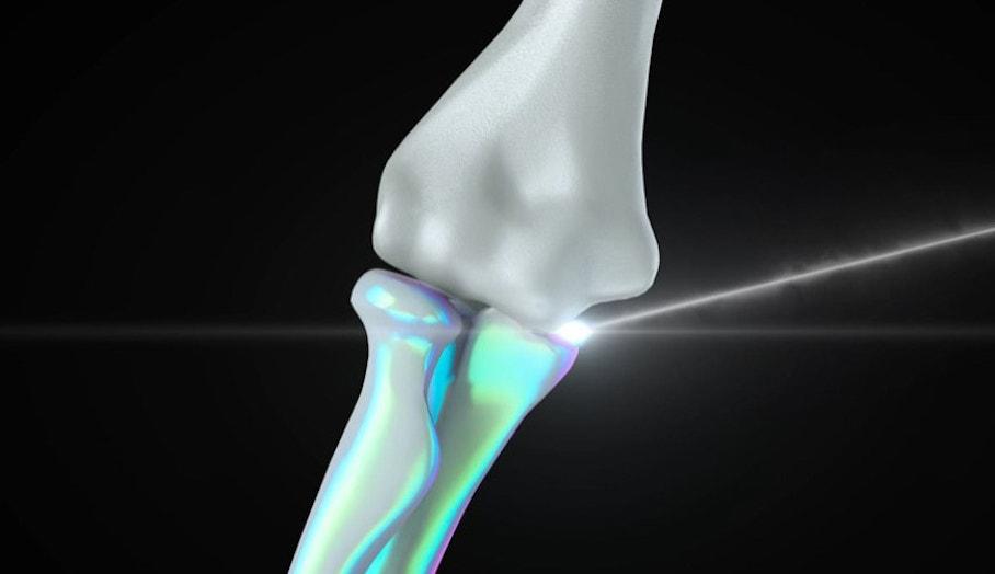 3D打印骨頭?